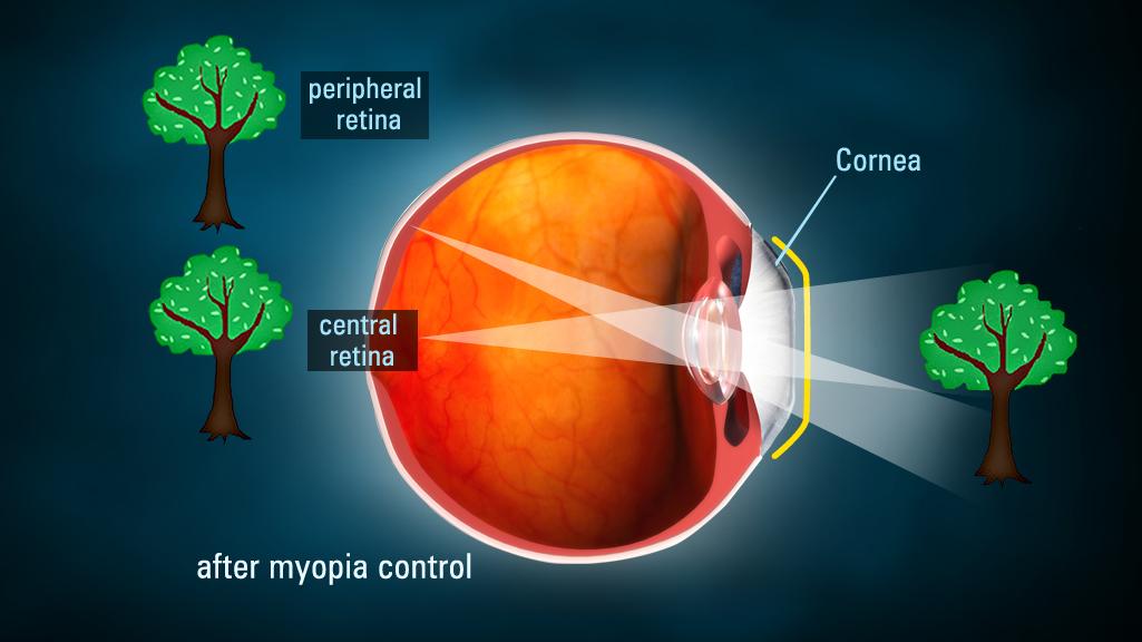 myoptia after contacts