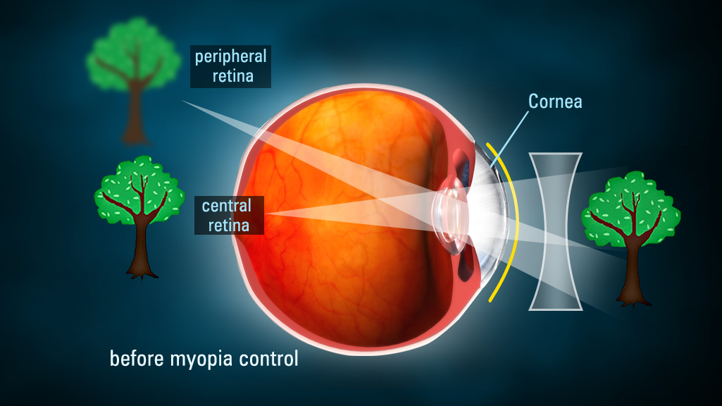 contacts for myoptia